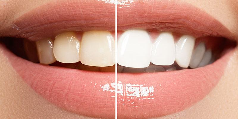 Blanchiement-dents_dentistes-Drummondville