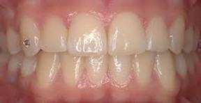 Clinique-Familiale-Dentaire-Drummondville_dentistes_4-1-Orthodontie-malocclusion