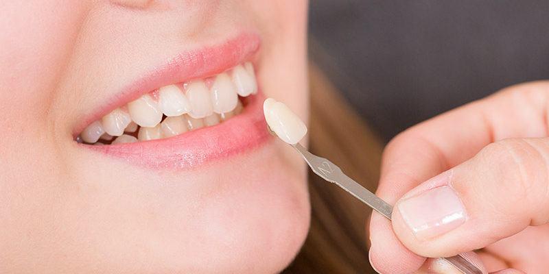 Facettes-dentaire_dentistes-Drummondville
