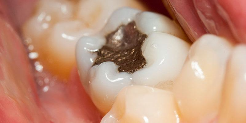 Plombages-dentaire_dentistes-Drummondville