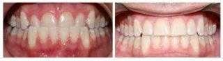 orthodontie-invisible